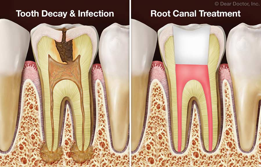 Tooth Decay & Root Canal