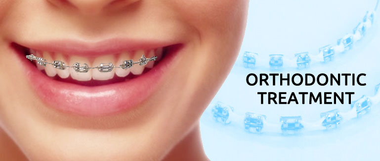 10 Surprising Myths About Orthodontic Treatment