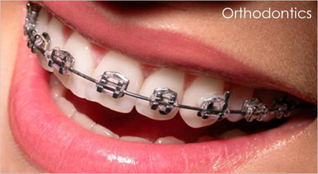 Enhance the beauty of your smile with Orthodontic treatment